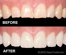 Cosmetic Dentistry before and after Wilmington, DE